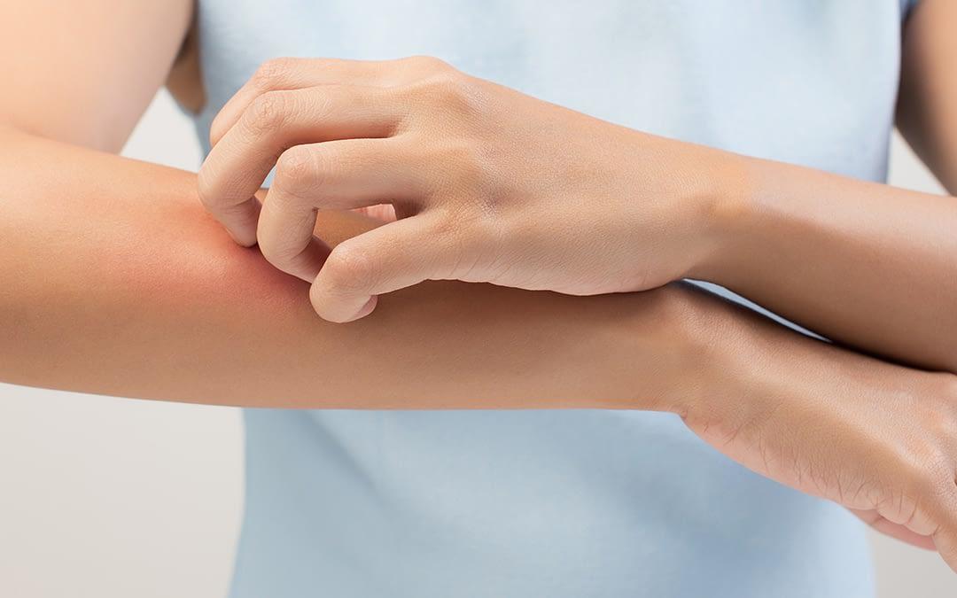 Ayurvedische Therapie von Hauterkrankungen Teil 1